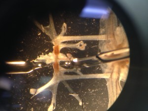 Snail brain cell through microscope