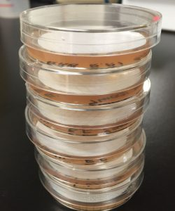 Completed S&B plates before incubation