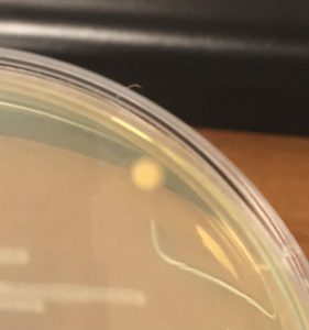 A contaminated plate: this is what the bacteria will look like when cultivated